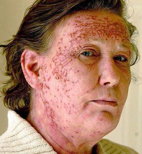 аллергия на краску для волос лечение