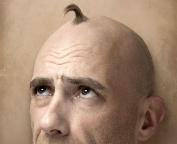 Если много волос на теле у мужчины – это фраза, сказанная не про вас, и все чаще замечается поредение когда-то густой шевелюры - возможно, стоит искать причину в нарушении работы внутренних органов