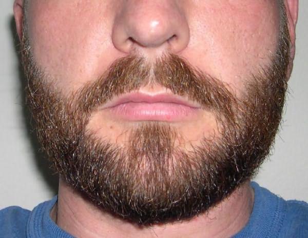 как ускорить рост бороды