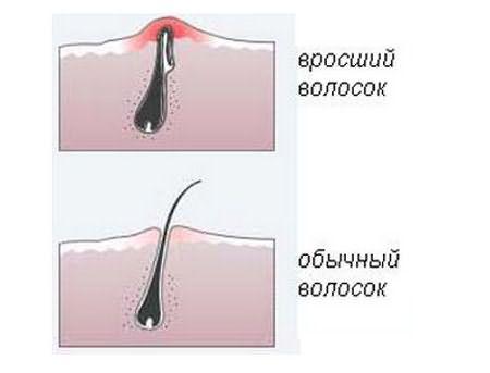 Сравнительное фото вросшего и нормального волоска.