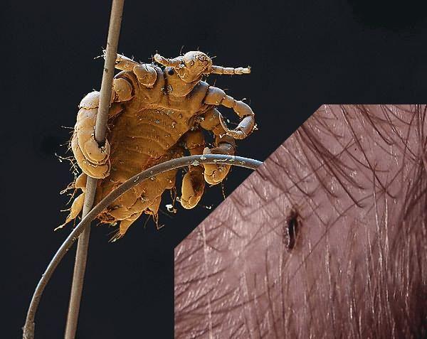 Фото головной вши - переносчика инфекционных заболеваний
